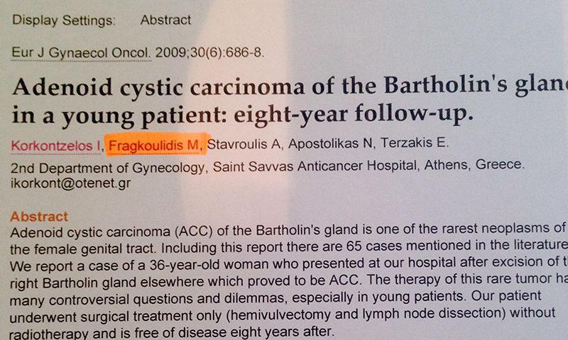 Αδενοειδές-κυστικό-καρκίνωμα-του-βαρθολινείου-αδένα-σε-νεαρή-ηλικία